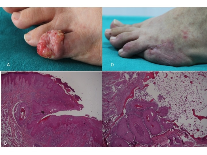 A painful nodule on the toe